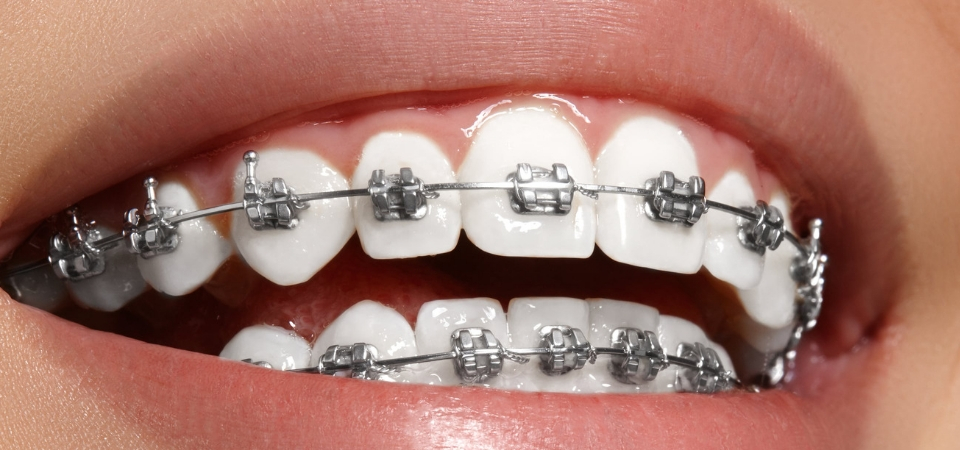 Clear Aligners: Better Replacement to Braces