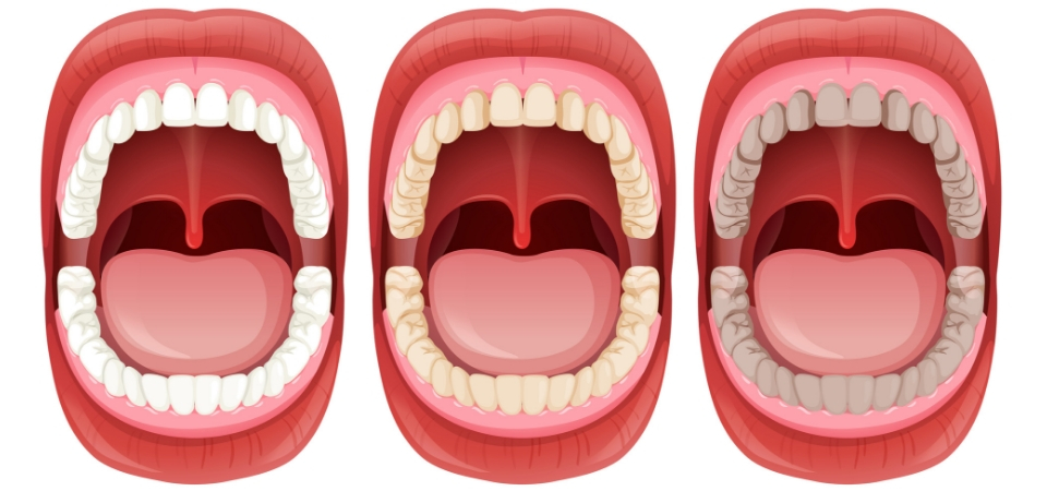 Five Signs that Prove your Oral Health is Worsening